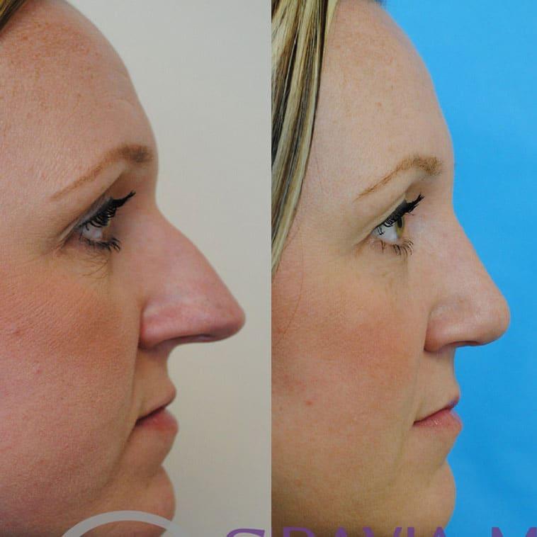 Botox Forehead and Rhinoplasty