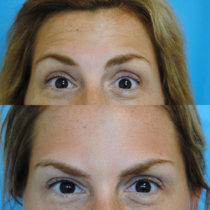 Botox Crows Feet and Botox Forehead