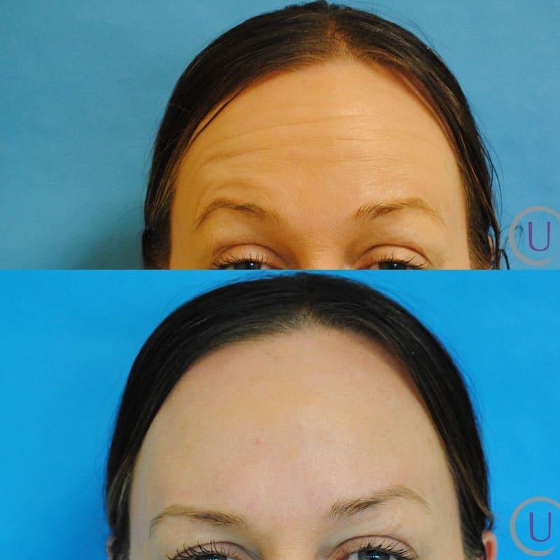 Botox Forehead and Botox Crows Feet