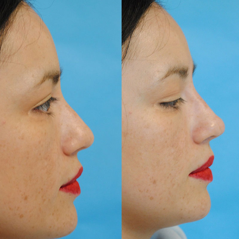 Filler Tear Trough and Nonsurgical Rhinoplasty