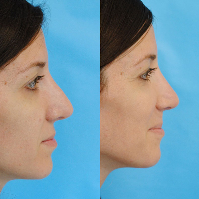 Revision Rhinoplasty and Septal Perforation Closure