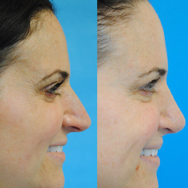 Rhinoplasty and Botox