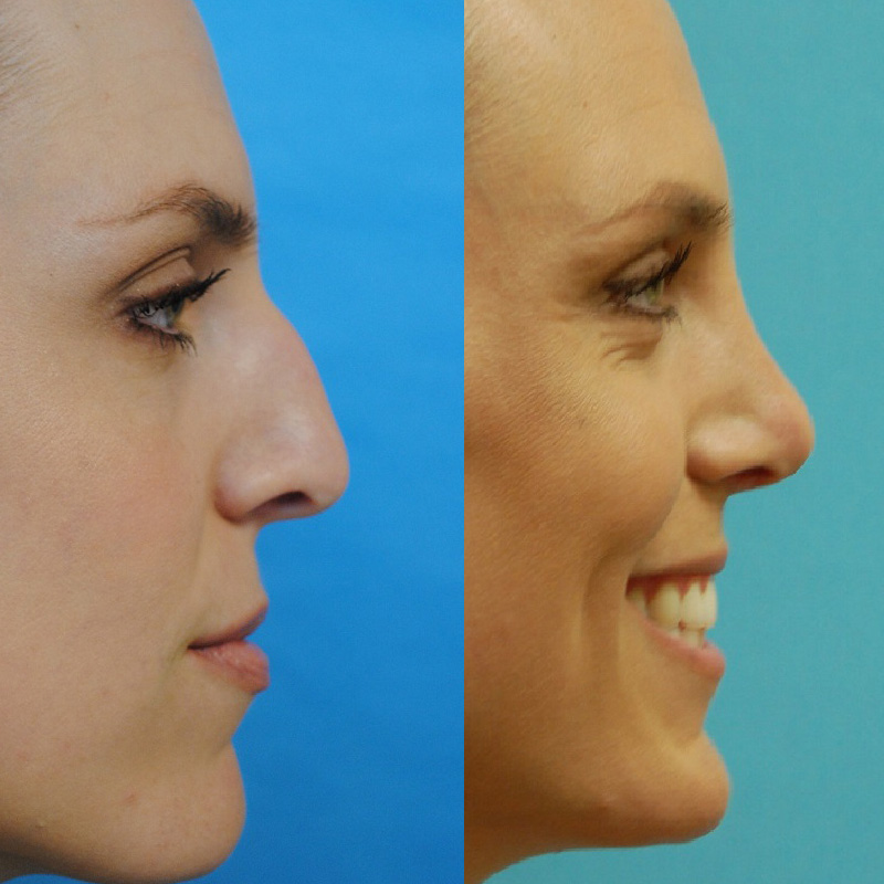 Rhinoplasty and Botox and Fillers